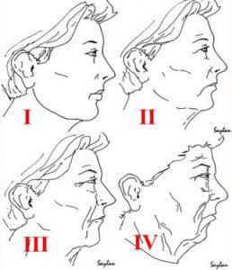 Пластика обличчя. Хірургія обличчяю