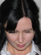 index_rinoplastic_clip_image059c