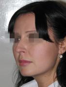 index_rinoplastic_clip_image059g