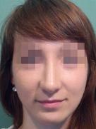 index_rinoplastic_clip_image067f
