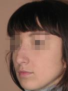 index_rinoplastic_clip_image067g