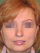 index_rinoplastic_clip_image085c