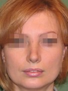 index_rinoplastic_clip_image085d