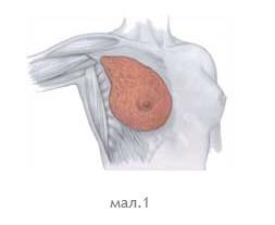 mamoplastyka_1