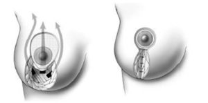mamoplastyka_5