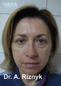 пластика обличчя до і після
