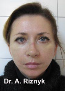підтяжка обличчя до і після