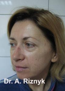 омолодження обличчя пластика  результати