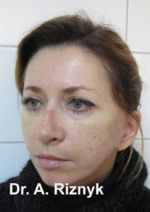 результати операції з омолодження обличчя