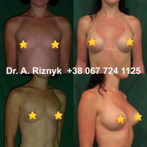 Імплантати для збільшення грудей. Результати